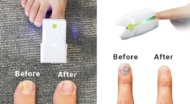 Fight nail fungus with a laser treatment newly arrived from USA!