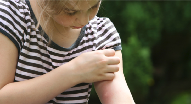 Protect the kids this summer from mosquitoes and their annoying bites